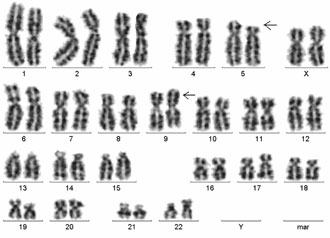 trisomy 5p Trisomy 18,trisomy 13,trisomy,patau syndrome,edwards syndrome,soft,chromosome disorder trisomy 18, trisomy 13 and related disorders 5p medical clinics.